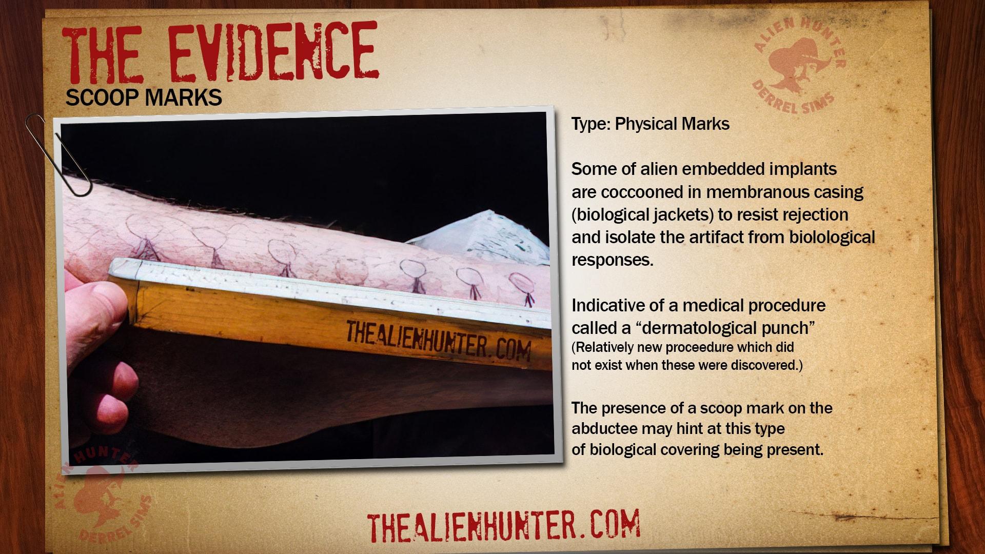 Alien Implant Evidence